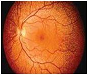 b_bio_retina